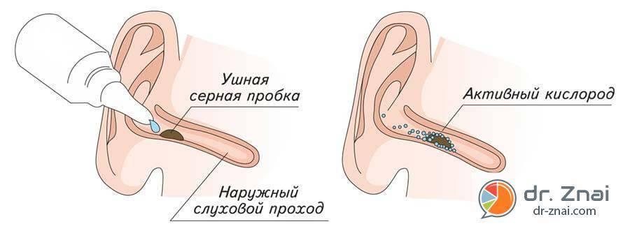 Капли для лечения пробки в ухе