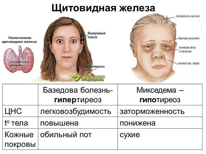 Гипотиреоз (микседема)