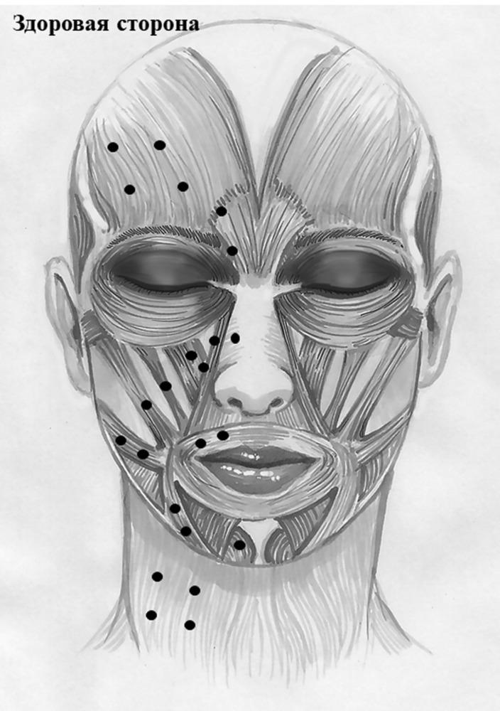 Важные нюансы массажа при неврите лицевого нерва
