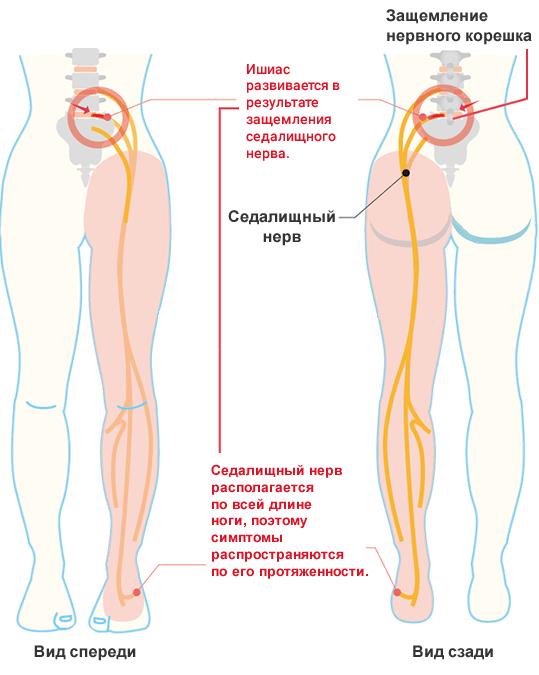 Защемление нерва в позвоночнике: симптомы и методы лечения | все о суставах и связках