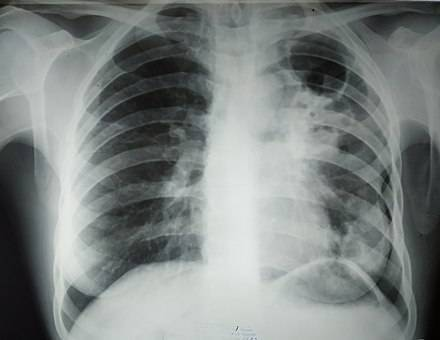 Открытая форма туберкулеза легких