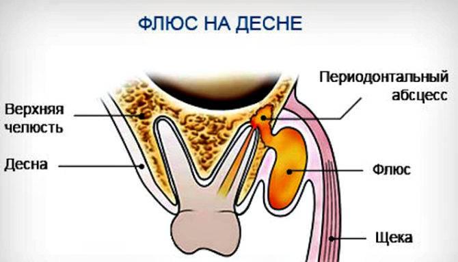 Гингивит - симптомы и лечение