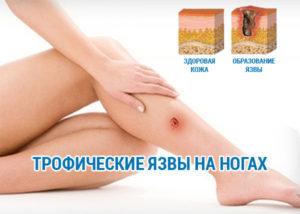 Болезнь рожа (рожистое воспаление)