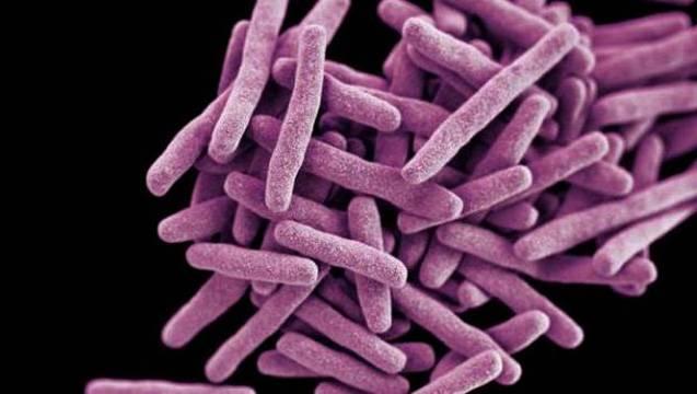 Туберкулез костей, суставов и позвоночника: симптомы, лечение. фото