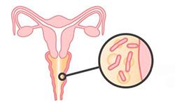 Дисбактериоз влагалища - симптомы, лечение при беременности, причины