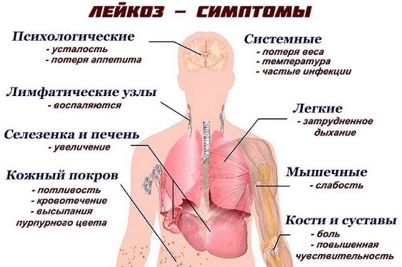 Лейкоз крови симптомы у взрослых анализ крови   1analiz.ru
