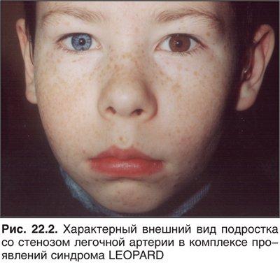 Цианоз лица при бронхите