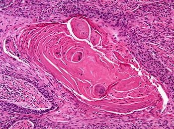 Медицинские заболевания - аденокарцинома