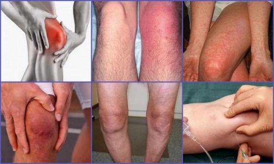 Мази при бурсите локтевого сустава: выбираем самое эффективное средство