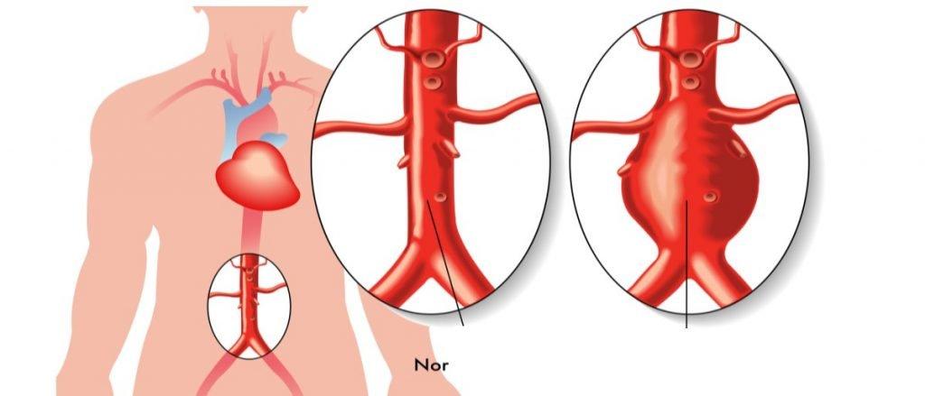 Аневризма аорты — большая медицинская энциклопедия