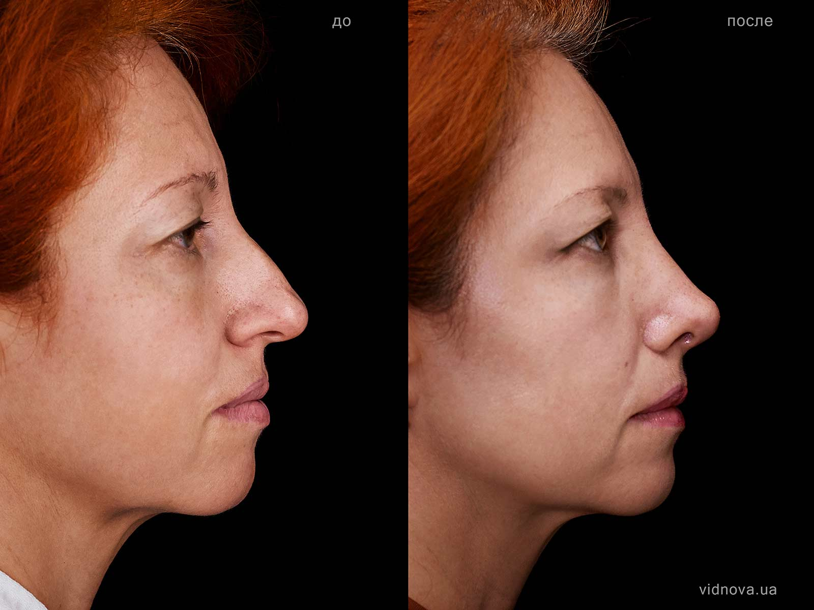 Коррекция формы и функции носа (риносептопластика)