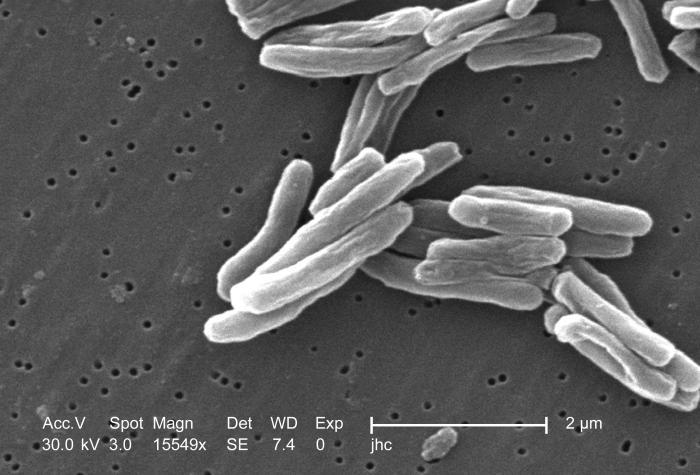 Инструкция о мероприятиях по борьбе с туберкулезом животных - страница 6