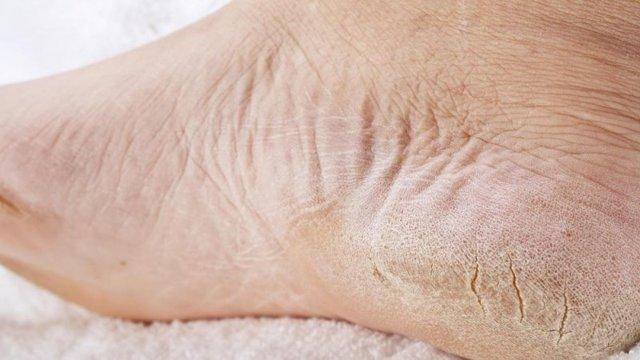 Эпидермофития. лечение и симптомы эпидермофитии паховой и стоп у мужчин и женщин.