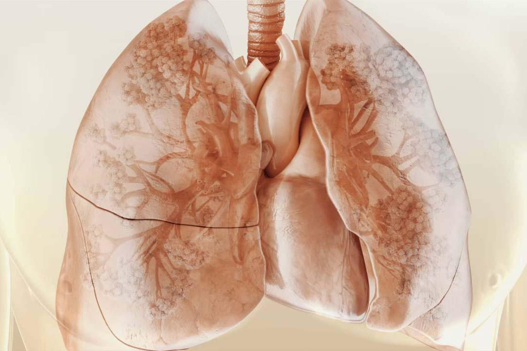 Кистозный фиброз легких – что это, лечится ли муковисцидоз легких? болезнь кистозный фиброз – симптомы, продолжительность жизни