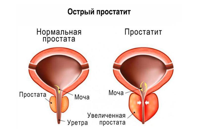Симптомы основных заболеваний предстательной железы