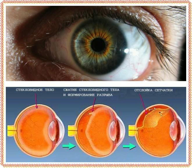 Проведение операции при отслоении сетчатки глаза