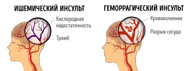 Уникальный белок уменьшает ущерб, получаемый мозгом после инсульта   tenox (тенокс, амлодипин) - давление в норме
