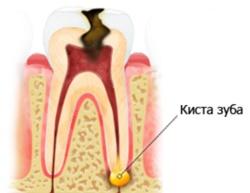 Киста и гранулема зуба причины симптомы диагностика лечение