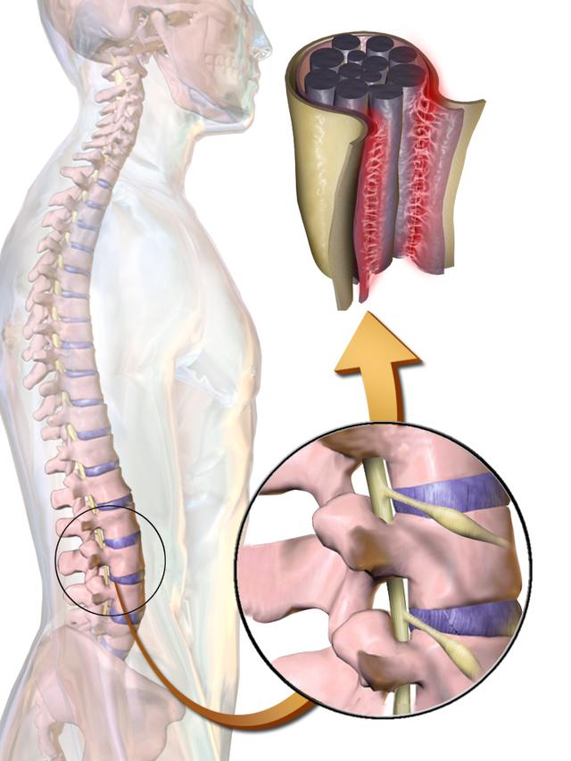 Что такое арахноидальная киста в головном мозге