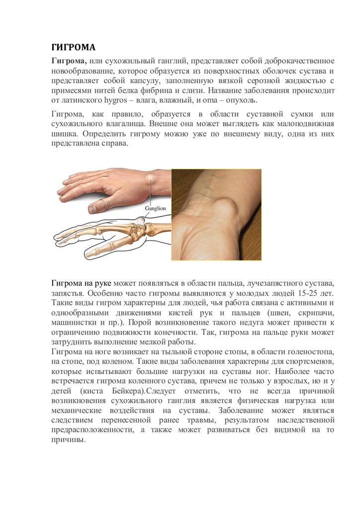 Гигрома: понятие, механизмы развития, лечение и симптомы