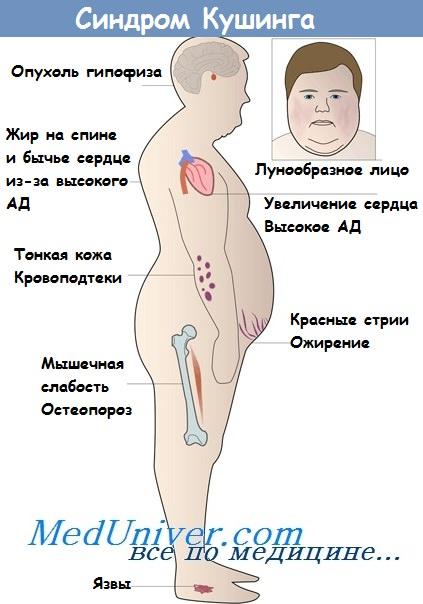 Диагностика и лечение артериальной гипертензии при гиперсекреции глюкокортикоидов (синдром и болезнь иценко-кушинга)