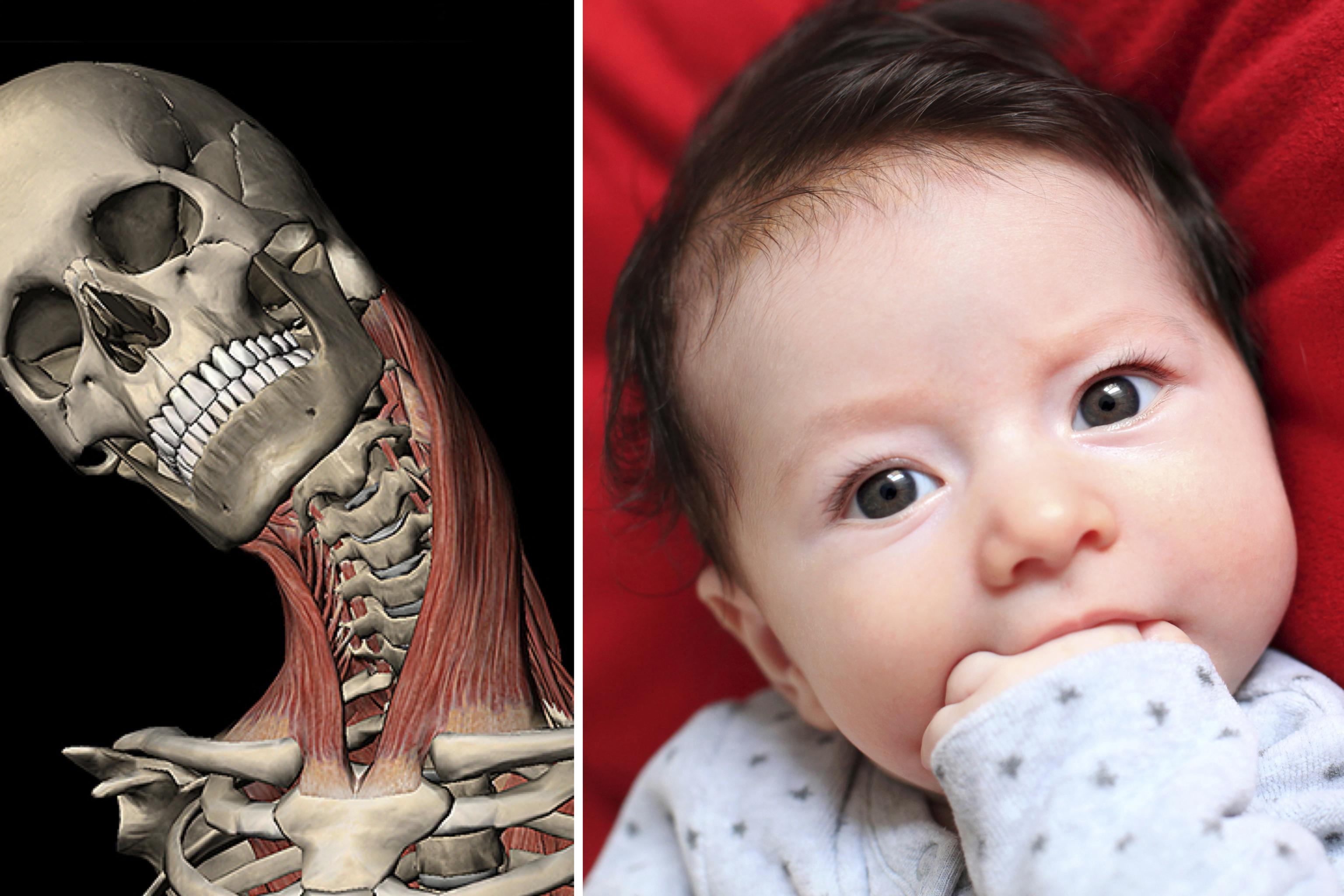 Делаем массаж новорожденному с кривошеей