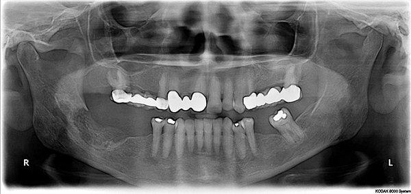 Что такое остеомиелит верхней челюсти и как его лечить?