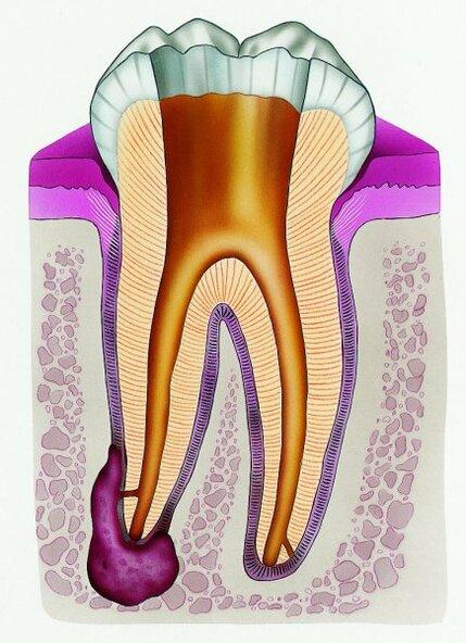 Как лечить кисту и гранелему зуба: рекомендации врачей