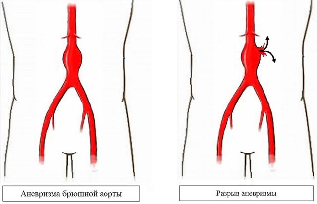 Аневризма аорты. причины и симптомы
