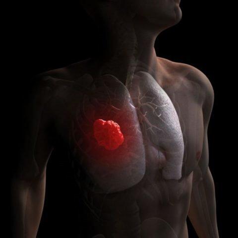 Рак бронхов и дыхательных путей: причины, признаки, диагностика, лечение