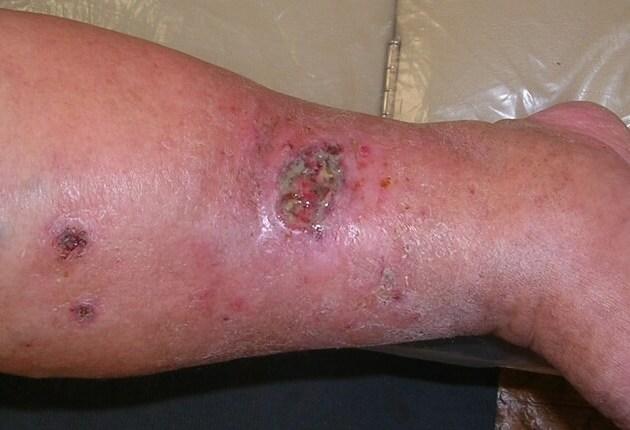 Препараты при лечении трофических язв на ногах
