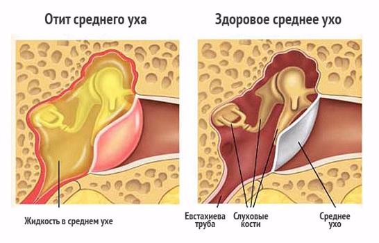Хронический отит: симптомы, лечение, профилактика