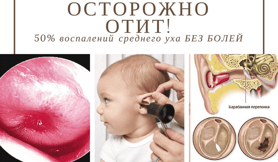 Лечение отита у детей, симптомы и лечение острого хронического отита среднего уха у ребенка