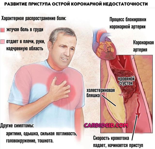 Может ли быть причиной смерти атеросклеротический кардиосклероз?