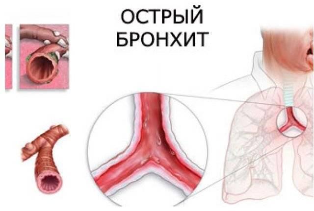Лекарство от хронического бронхита [для взрослых]