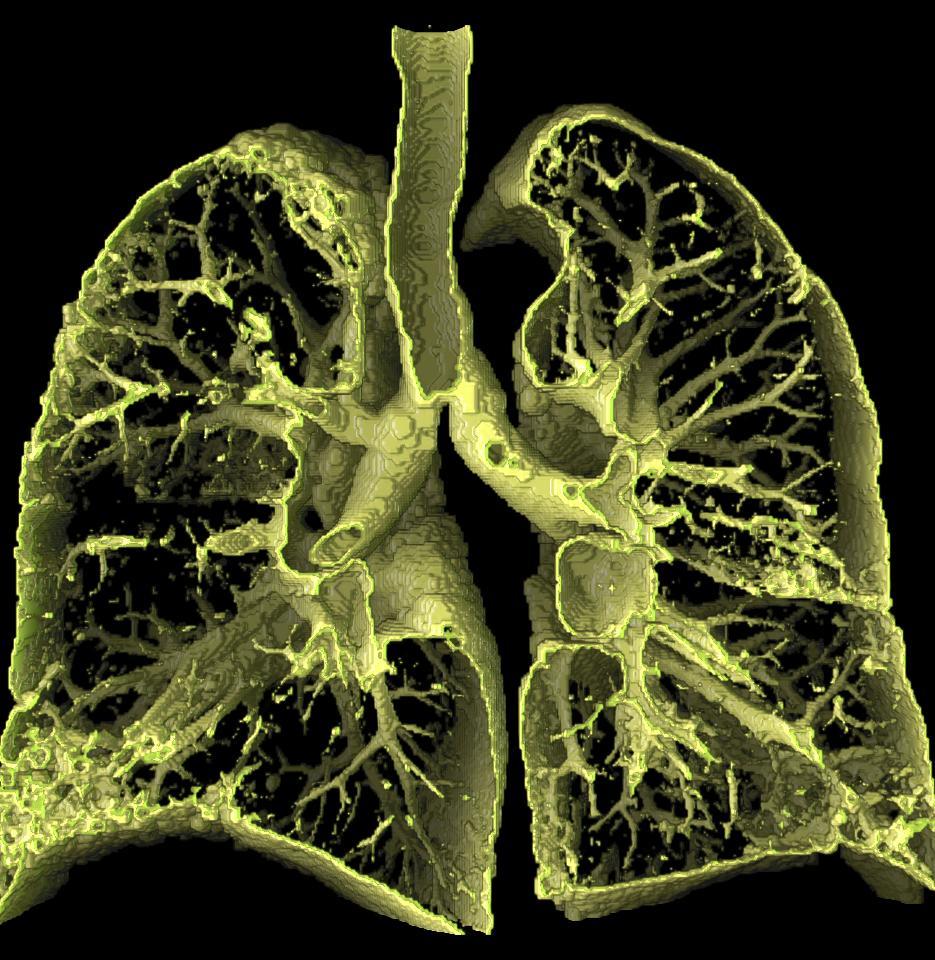 Лечение альвеолита легких