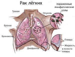 Плоскоклеточный рак бронхов: особенности онкоопухоли