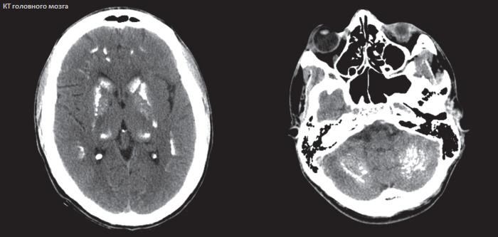 Очаги глиоза в головном мозге