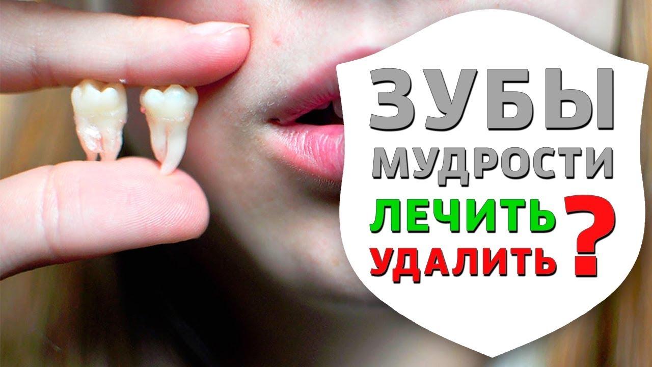 Удаление зуба мудрости и рекомендации после удаления