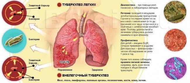 Туберкулез позвоночника опасен или нет