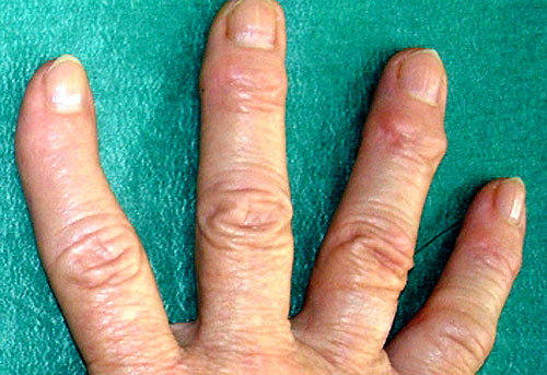 Артрит пальцев рук: симптомы и лечение (с фото)