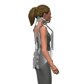 Болезнь шейермана-мау (юношеский кифоз): симптомы, причины, стадии, последствия, диагностика, упражнения, профилактика