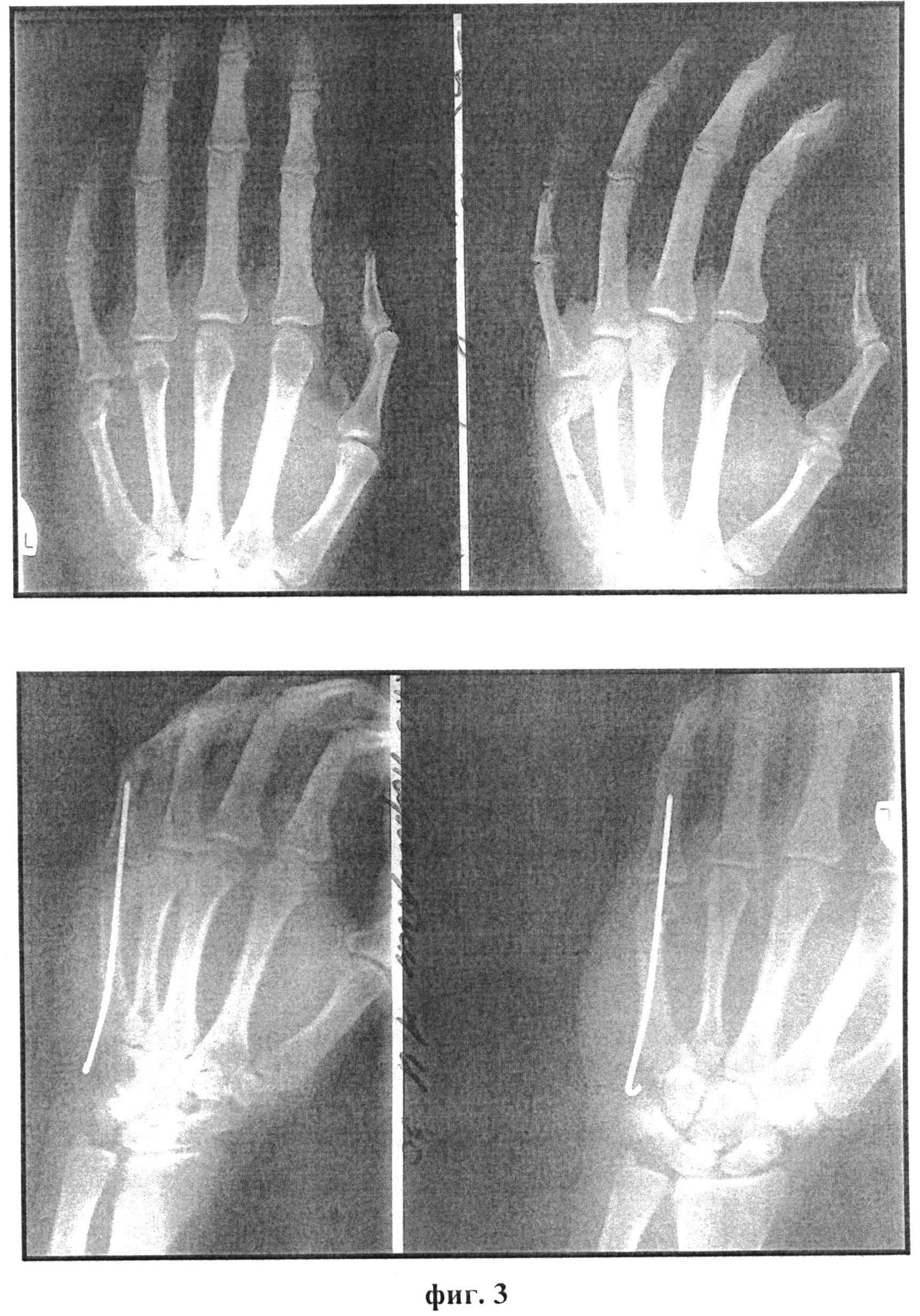 Как лечить и сколько носить гипс при переломе головки лучевой кости
