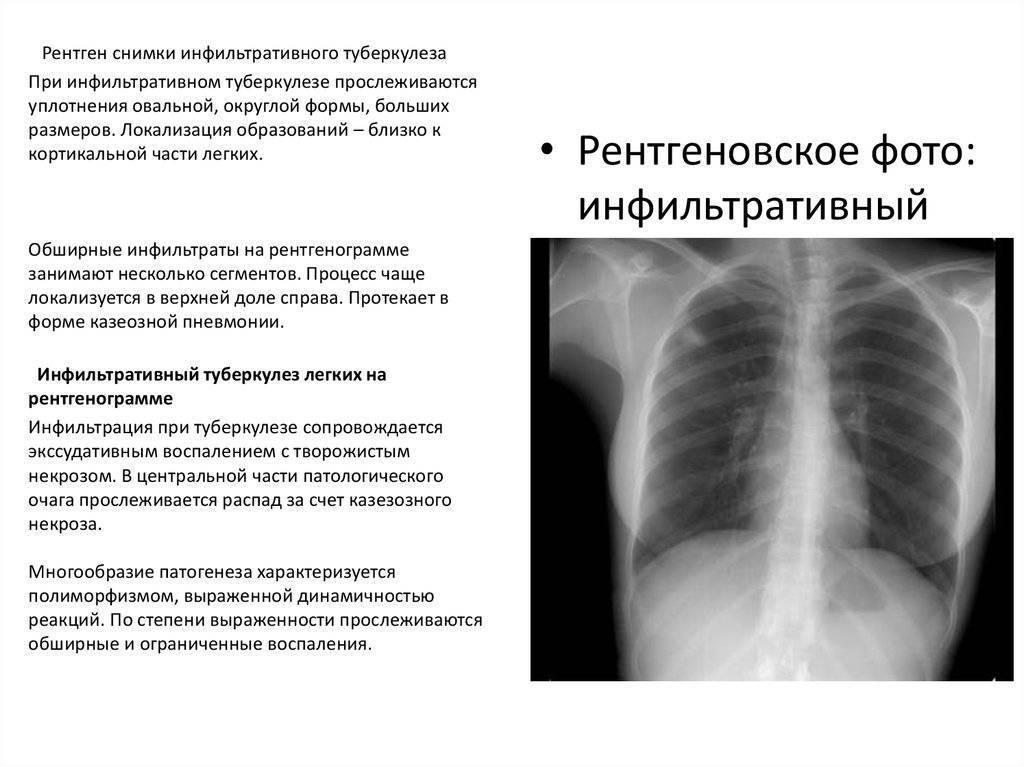 Пневмония при туберкулезе легких: особенности проявления, лечение и прогноз