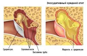 Экссудативный средний отит у детей: виды заболевания, причины возникновения, симптомы, диагностика и лечение