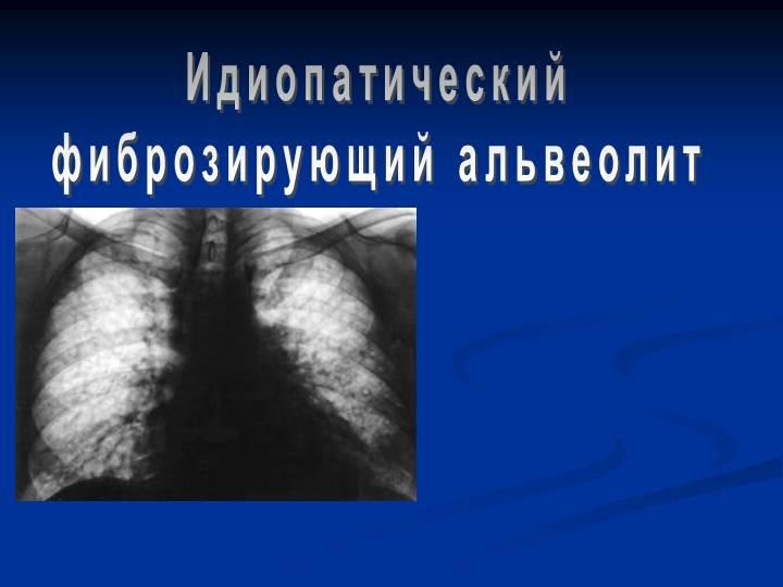 Альвеолит - симптомы, лечение, осложнения, альвеолит легких