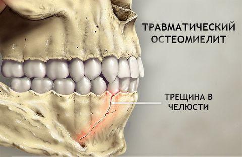 Опасность промедления при остеомиелите челюсти