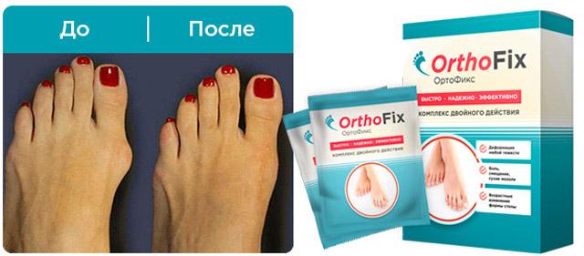 Реальная эффективность ортофикс от вальгуса по реальным отзывам покупателей!