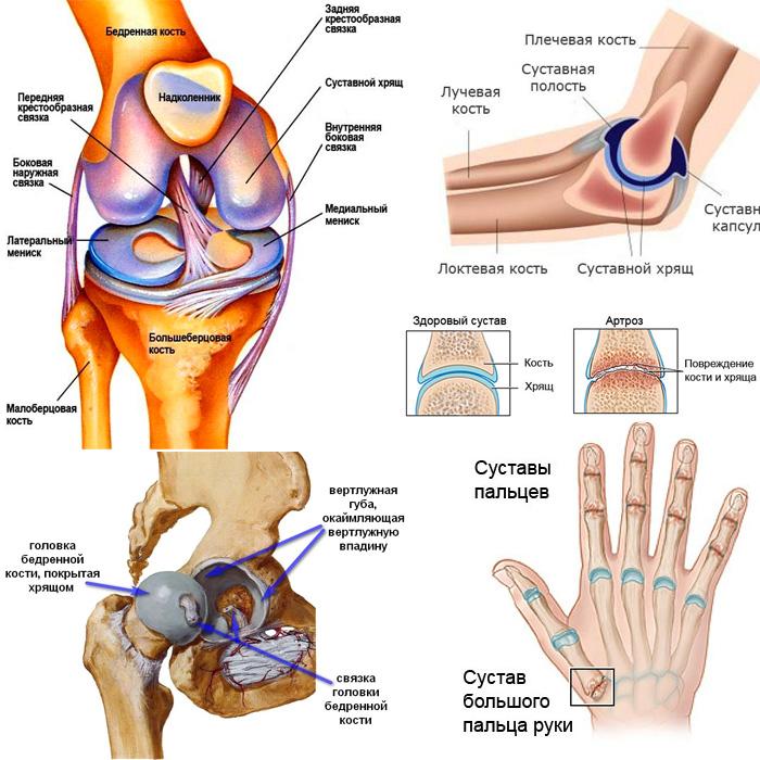 Коксартроз тазобедренного сустава 4 степени: можно ли вылечить без операции