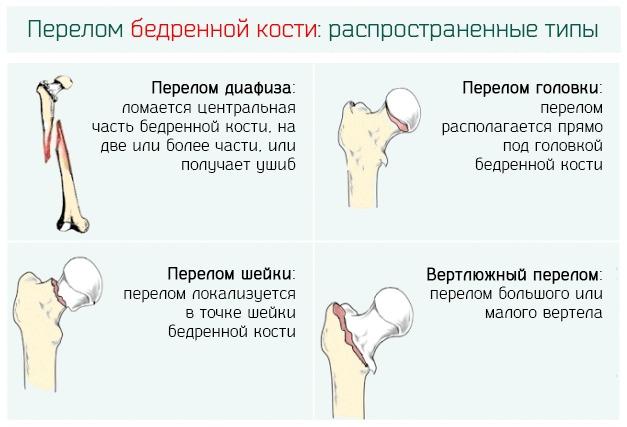 Перелом шейки бедра: симптомы, виды, лечение, восстановление